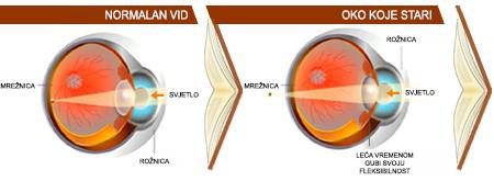 Progresivne naočalne leće - Bilić Vision