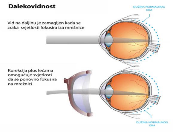 dalekovidnost Poliklinika Bilić Vision