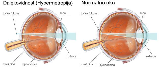 Korekcija dalekovidnosti s jednojakosnom lećom - Bilić Vision