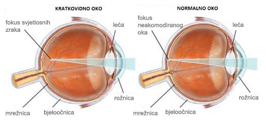 Korekcija kratkovidnosti s jednojakosnom lećom - Bilić Vision